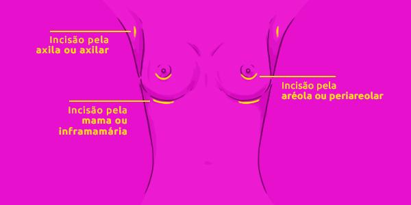 Incisão pela axila ou axilar; incisão pela mama ou inframamária; incisão pela aréola ou periareolar