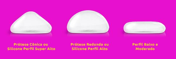 prótese de silicone: Prótese Cônica ou Silicone Perfil Super Alto, Prótese Redonda ou Silicone Perfil Alto, Perfil Baixo e Moderado