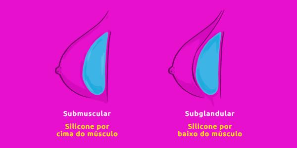Prótese de Silicone: Formas de colocar silicone nos seios - submuscular (por cima do músculo) ou subglandular (por baixo do músculo)