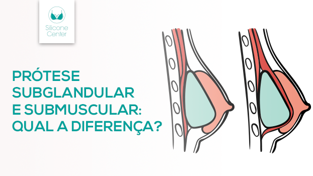 Saiba a diferença entre prótese subglandular e submuscular